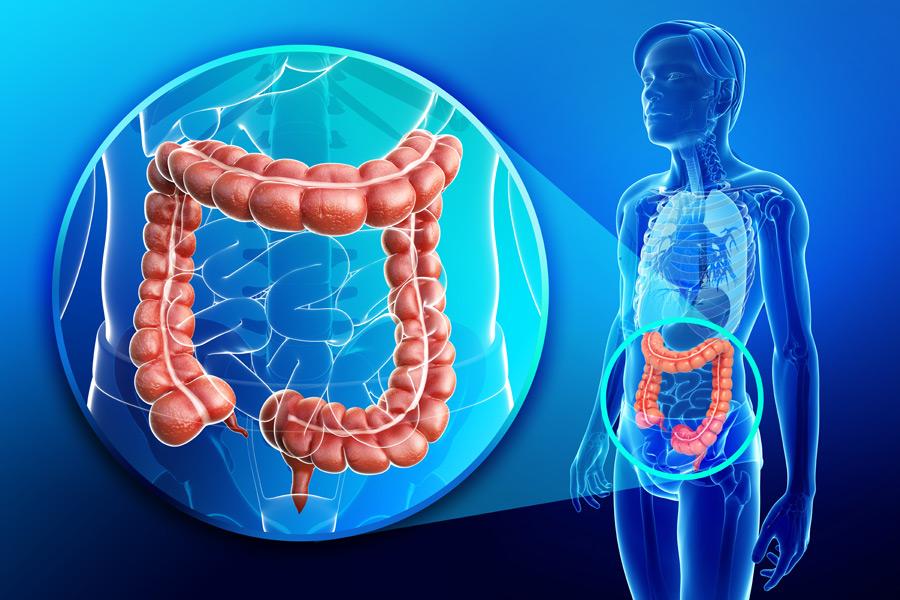 Digestive Dysfunction = Gut Gone Bad!